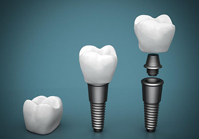Dental Implants - the cost of dental implants is very reasonable